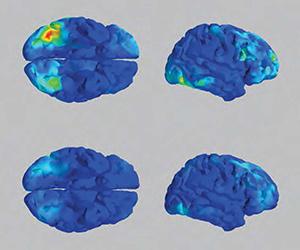 EEG and fMRI signals
