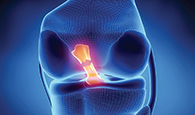 http://www.mccormick.northwestern.edu/images/news/2014/12/researchers-use-nanotechnology-to-engineer-acl-replacements.jpg