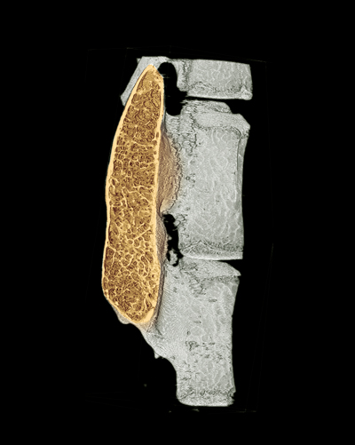 The colored region in a micro-CT image shows regenerated high-quality bone in the spine with minimal use of growth factor.