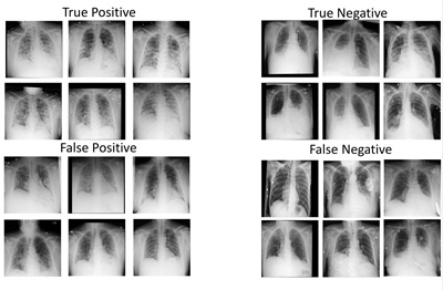 Sample of most representative images from different classes of DeepCOVID-XR predictions relative to the reference standard. Credit: Northwestern University