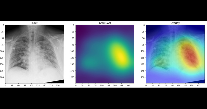Generated heat maps highlighted abnormalities in the lung fields in images accurately labeled as COVID-19 positive.