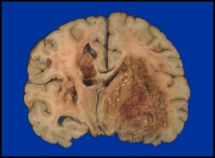 Brain Tumor Therapeutics Research Falk Center For